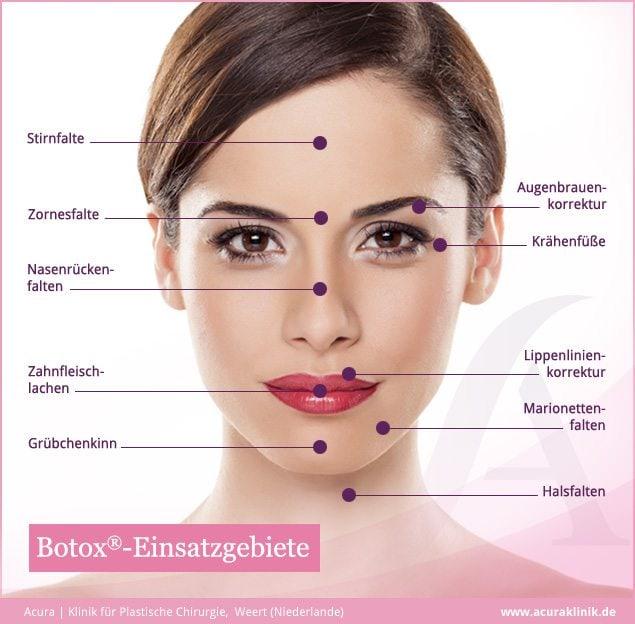 Praxismarketing – Infografik Botox