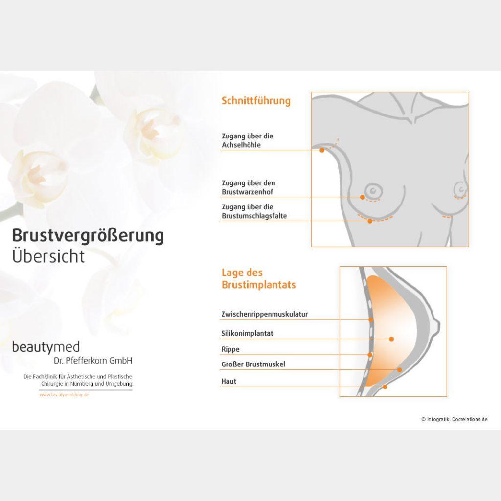 Praxismarketing – Infografik Brustvergrößerung