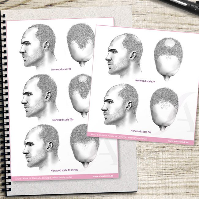 Praxismarketing – Acuraklinik – Zeichnung und Infografik: Haarausfall